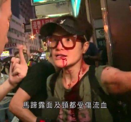 香港艺人马蹄露遇袭后首度受访:我不是英雄,当时只是想吓退黑衣人